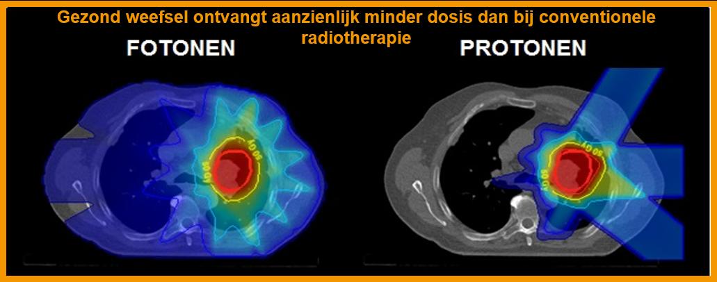 Protonensamenwerking